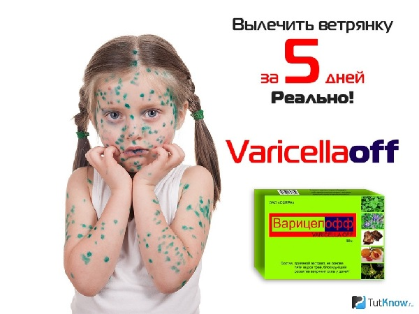 Варицелла новое лекарство от ветрянки