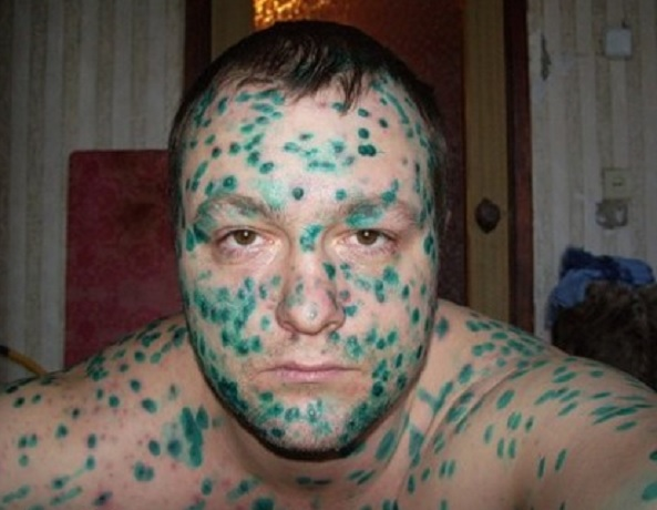 Лицо в зеленке