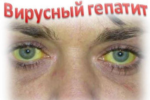 Глаза при вирусном гепатите