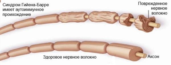 Нервы пораженные синдромом
