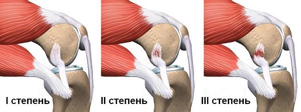 Упражнения для укрепление коленного сустава упражнения локтевой сустав