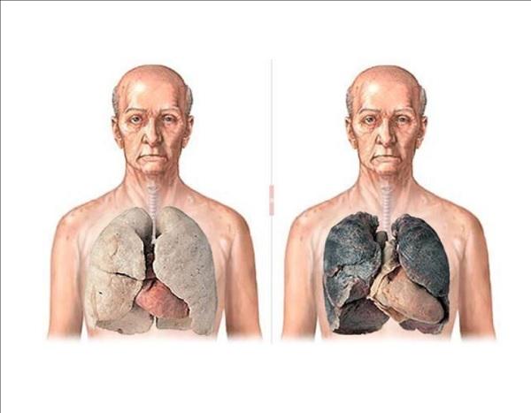 Сравнение легких курильщика и не курящего