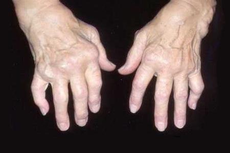 руки больного остеоартритом