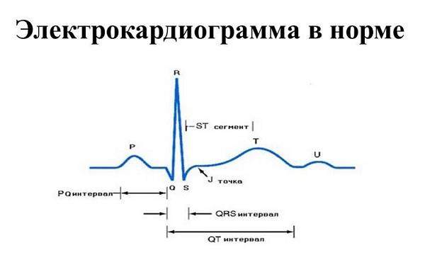Электрокардиограмма в норме