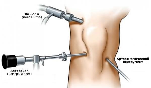 Хирургическая чистка сустава