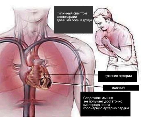 Ишемия и стенокардия