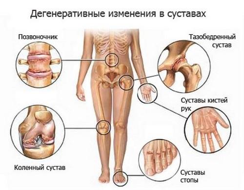 Болезни суставов