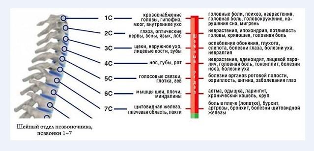 Причины болей от шейного остеохондроза