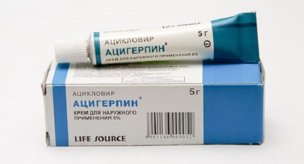 Ацигерпин от герпеса
