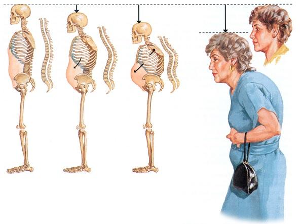 Последствия остеопороза у женщин
