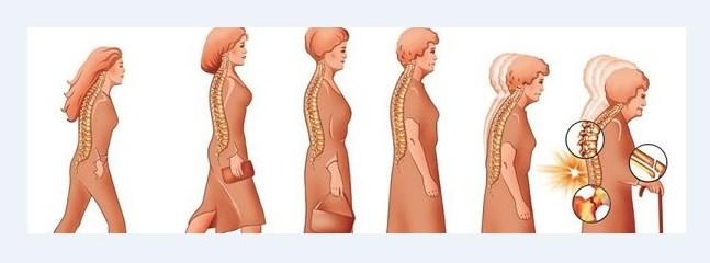 Профилактика остеопороза у женщин после 50 лет