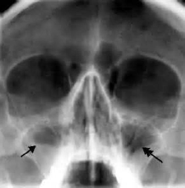 Рентгеновский снимок
