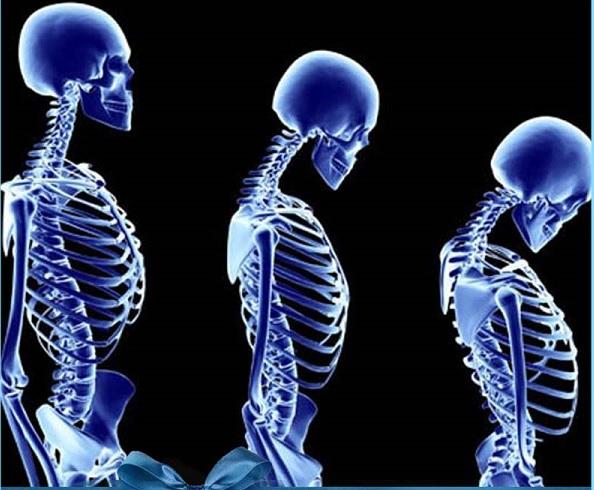 Влияние остеопороза на осанку