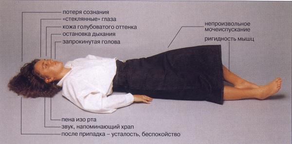 Симптоматика эпилепсии