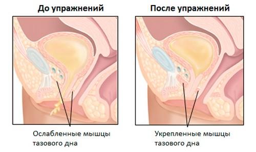 Комплекс упражнений Кегеля для женщин и мужчин при геморрое