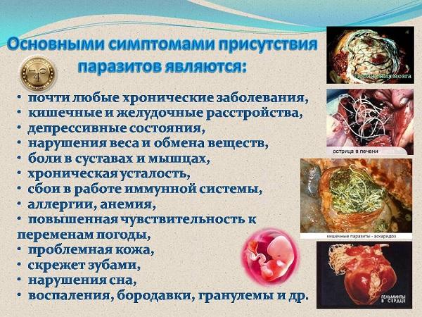 сиптомы присутствия паразитов в организме