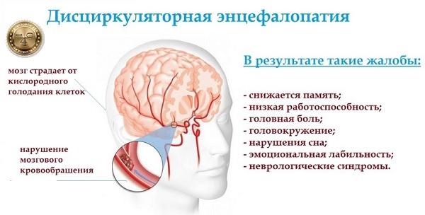 заболевание энцефалопатия