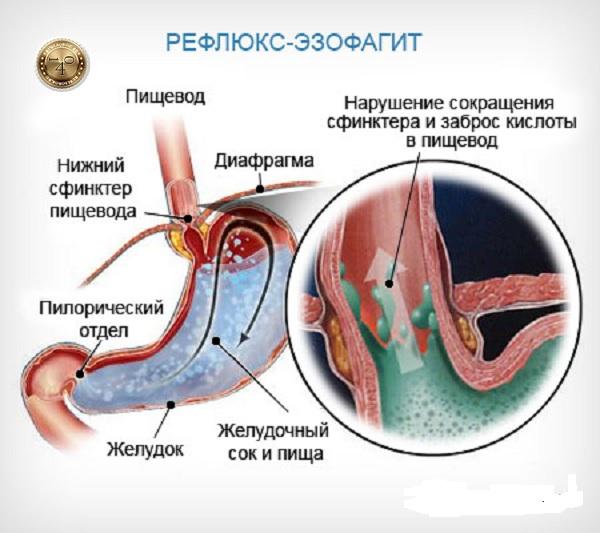 заболевание рефлюкс-эзофагит