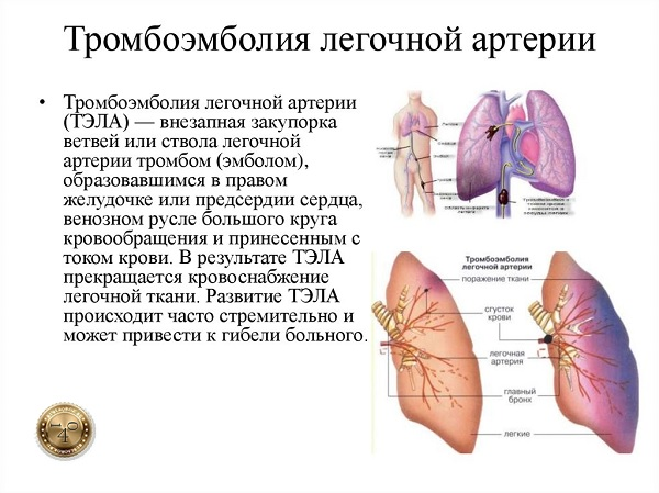 заболевание тромбоэмболия