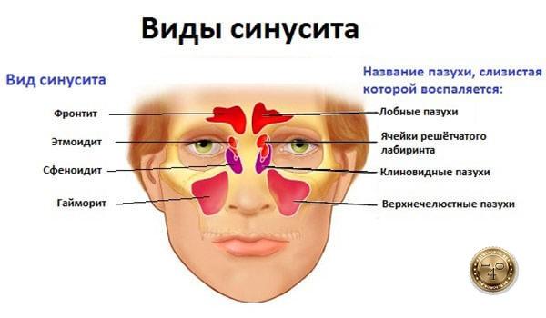 заболевание синусит