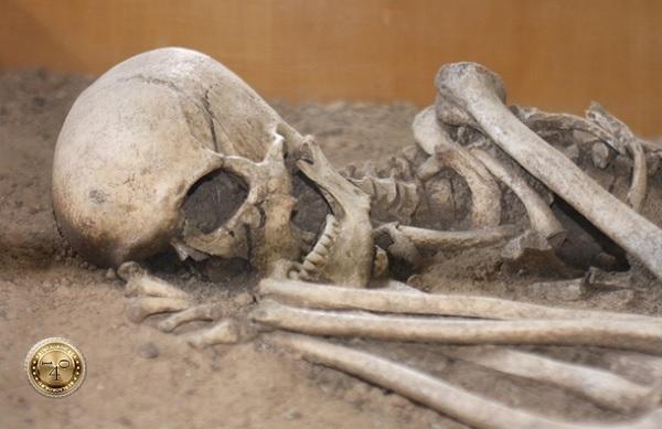 кости несчастного