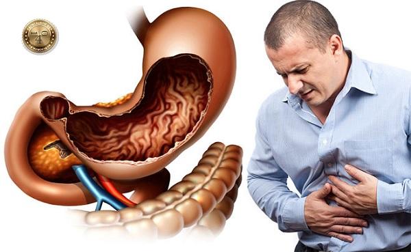 хронические заболевания кишечника и желудка