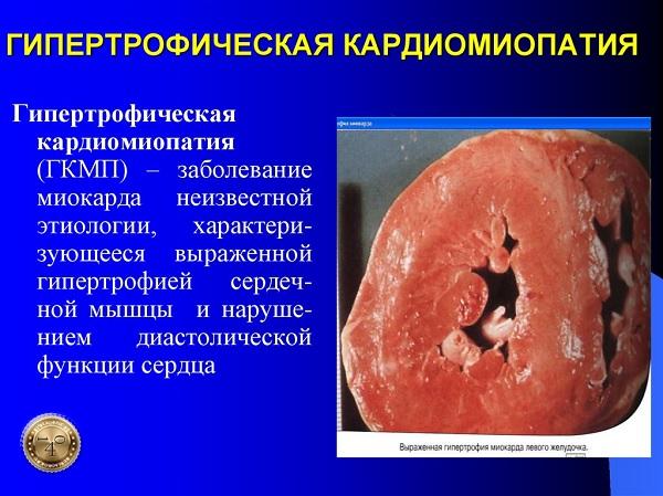гипертрофическая кардиомиотропия